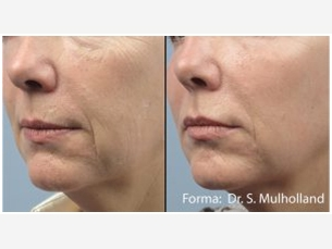 Radio Frequency Facial Rejuvenation