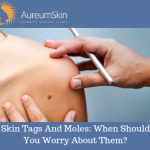 skin tags and moles