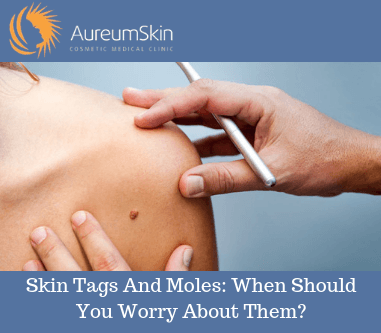 skin-tags-and-moles