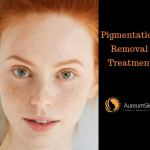 pigmentation removal treatment